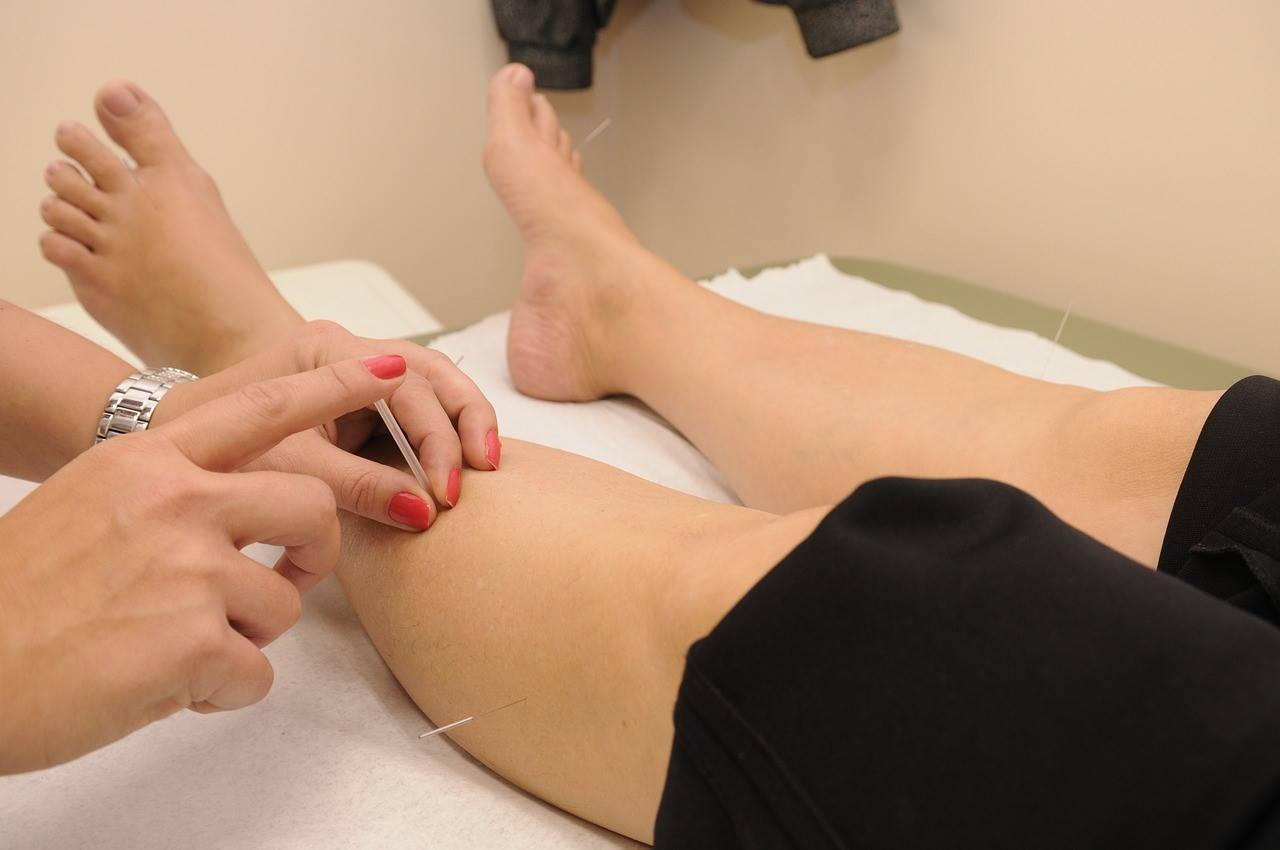 Dry Needling And Acupuncture Therapy